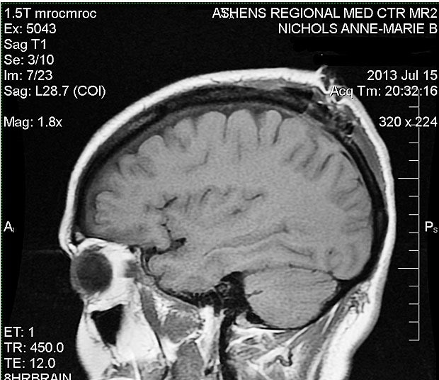 MRI after the menigioma was taken out